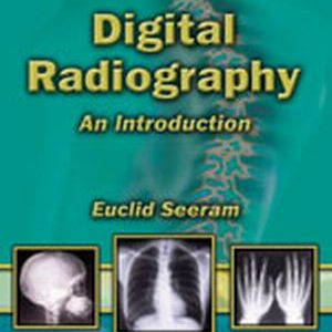Test Bank (Complete Download) for   Digital Radiography: An Introduction for Technologists