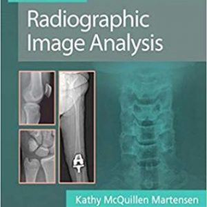 Test Bank (Complete Download) for Radiographic Image Analysis, 5th Edition, Martensen, ISBN-10: 0323522815 Instantly Downloadable Test Bank