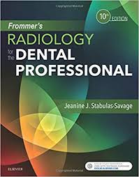 Test Bank (Complete Download) For Frommer's Radiology for the Dental Professional 10th Edition by Stabulas-Savage ISBN: 9780323479332 Instantly Downloadable Test Bank